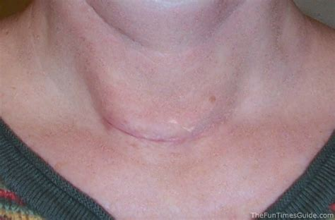 caring for thyroid incision picture 17