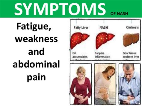symptoms of an enlarged liver picture 2