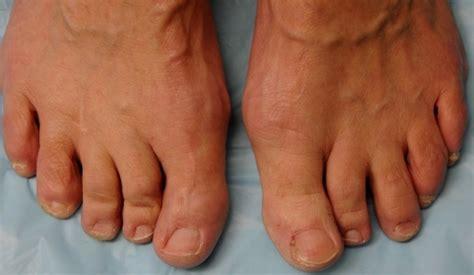 cape girardeau laser toenail fungus removal picture 1