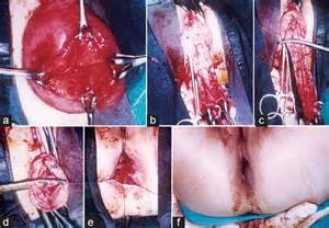 colon resection 2014 picture 5