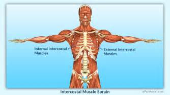 intercostsal muscle strain picture 1