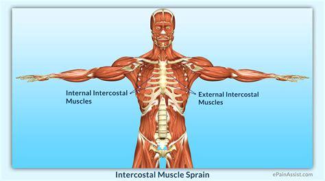 intercostsal muscle strain picture 2