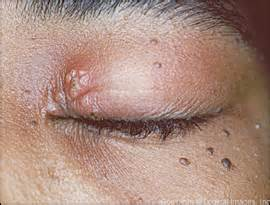 how do you get herpes picture 13