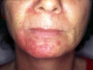 dermatologist prescribed striae treatment picture 2