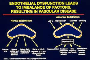 vascular disease erection picture 13