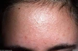 folliculitis picture 3