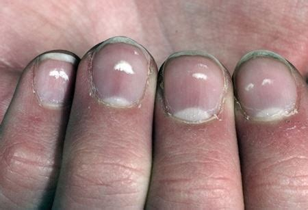 dry skin cure picture 5