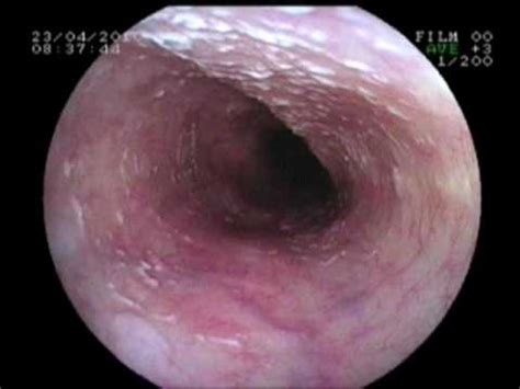 cause of yeast in esophagus picture 6