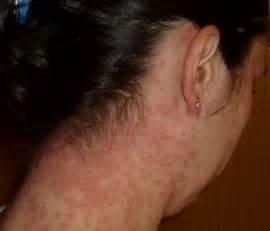 auto immune disease of skin picture 7