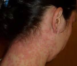 immune suppressive drugs for hives picture 6