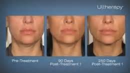 an skin tightening laser nj picture 2