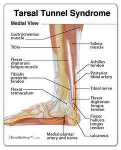 vitamins for tarsal tunnel syndrome picture 2