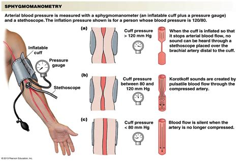 Arterial blood pressure picture 1