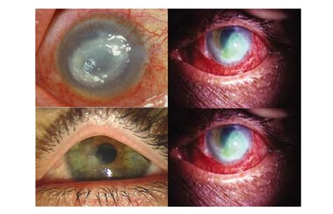 contact lense ers getting bacterial infection in eyes picture 13