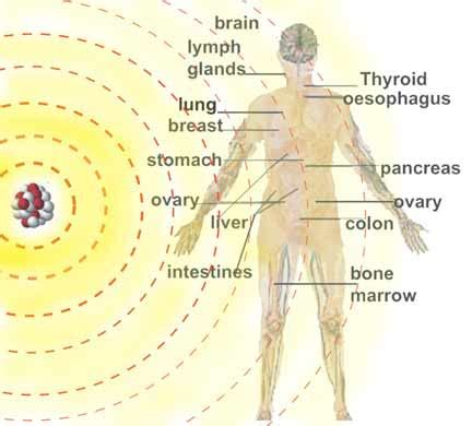 chernobyl and thyroid cancer picture 9