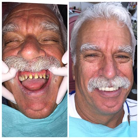 los angeles teeth whitening picture 11