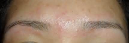 waxing acne picture 1