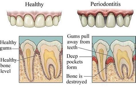 treatment for healthy gums and teeth picture 10