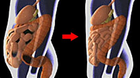what are probiotics used in colon cleansing picture 7