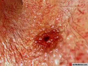 cause of bacterial infection in the stomach picture 3
