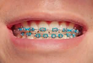braces picture 5