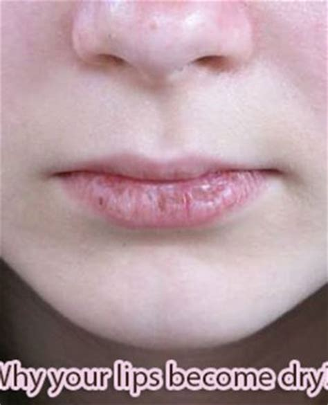 causes of pink lips picture 6