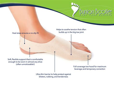 are you put to sleep for bunion surgery picture 3