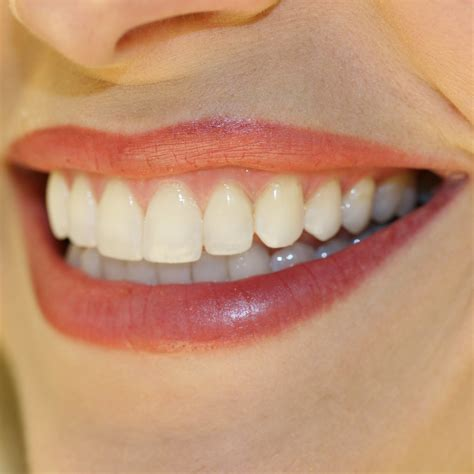 smile teeth picture 2