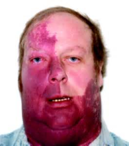 skin anomalies in sturge-weber syndrome picture 5