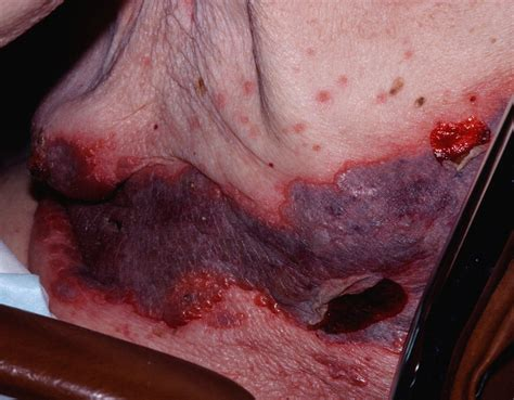 treatment for herpes zoster picture 5