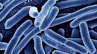 Bacterial e coli picture 7