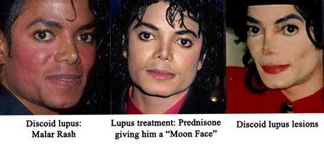 acne treatment comparison picture 11