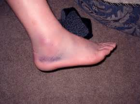 Swollen ankles medical symptoms blood pressure picture 11