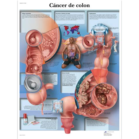 c ancer de colon picture 2