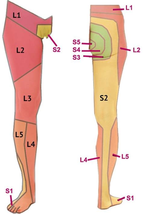 facet joint pain and stabilization picture 15