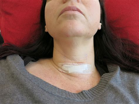 after thyroid surgery picture 2