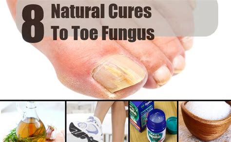 home remedy for nail fungus picture 3