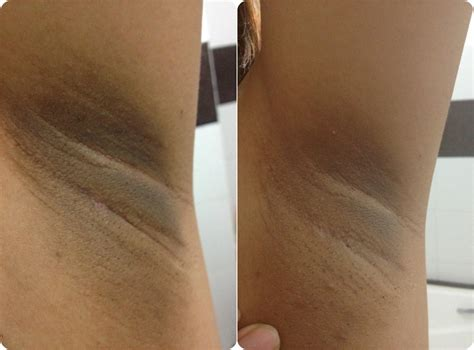 acanthosis nigrosis xtreme brite gel picture 2