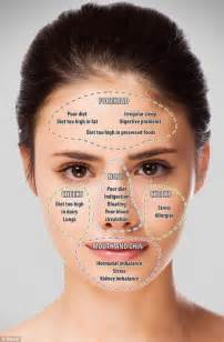 acne only on face picture 2
