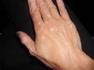 can thyroid cause vitiligo picture 6