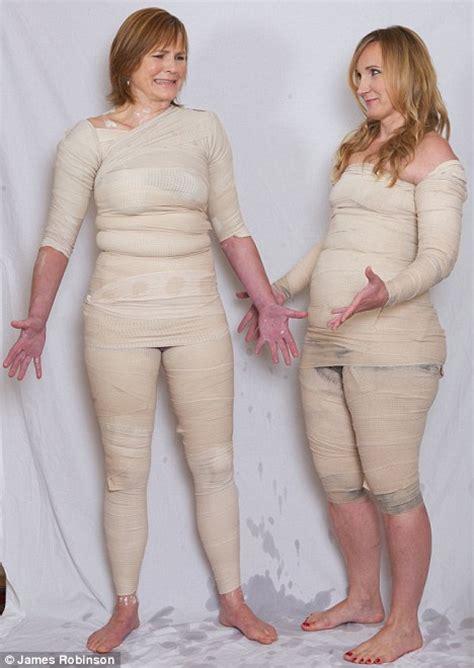 cellulite wraps picture 11