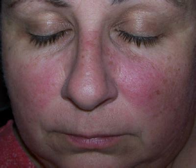 rash on face and joint pain picture 22