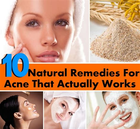 cure for acne picture 10