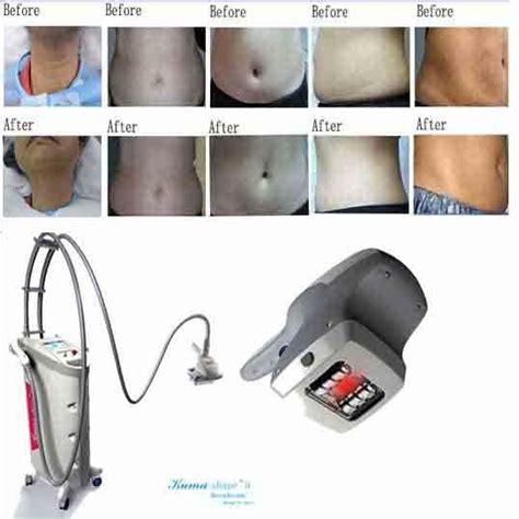 cellulite machines picture 2