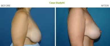 before after breast saggy augmentation pictures picture 3