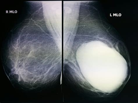 irregular skin lesions of the breasts picture 8