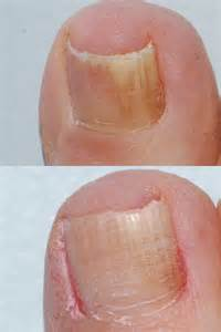 patholase's laser treatment of toenail fungus salt lake city picture 1