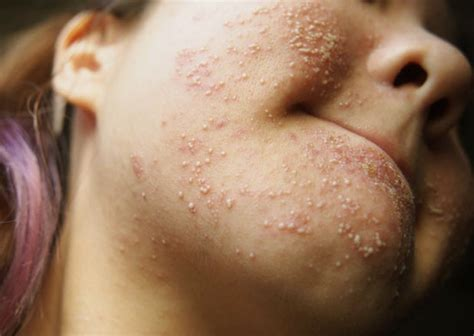 allergic reaction of skin related to nerves picture 10