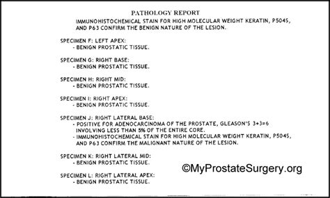 Falsified prostate cancer biopsy report picture 3