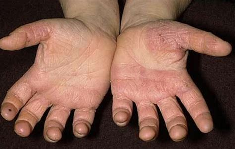 ringworm skin disease picture 9